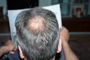 Hair Transplantation Calgary, Alberta T2S 3E6 / Canada