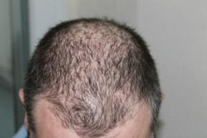 hair-restoration-300x200